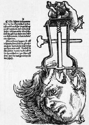 The Trepanation of the Skull
